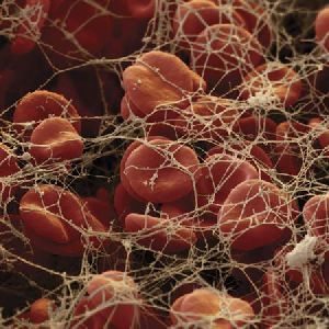Types Of Blood Anemia